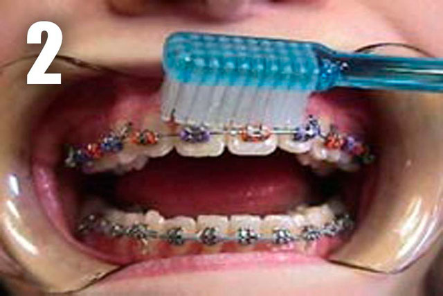 Hygiene instruction riverdale family orthodontics step 2 then place your tooth brush at a 45 degree angle between your gums and teeth brush above upper teeth or under lower teeth the wire along all the solutioingenieria Choice Image