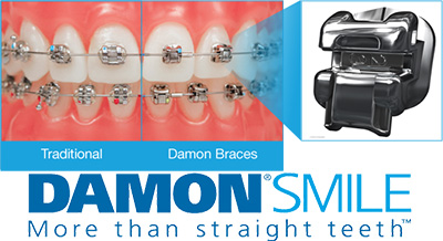 Damon Self-Ligating Braces