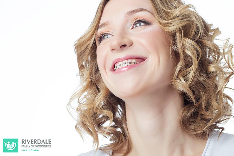 Adults Orthodontics