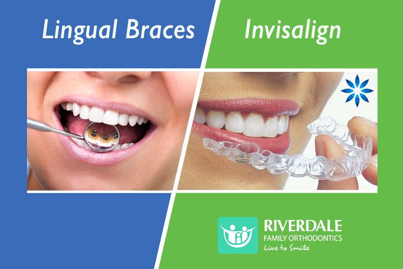 lingual braces vs Invisalign