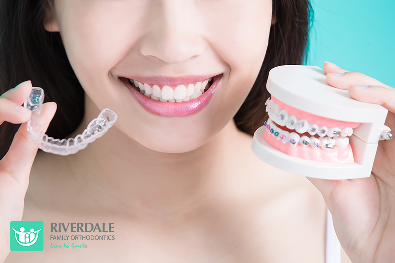 Invisalign vs braces